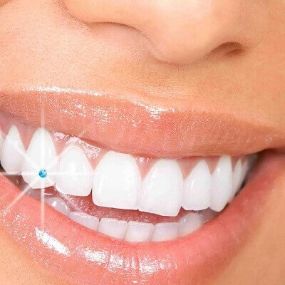 Tooth Jewellery in Pune