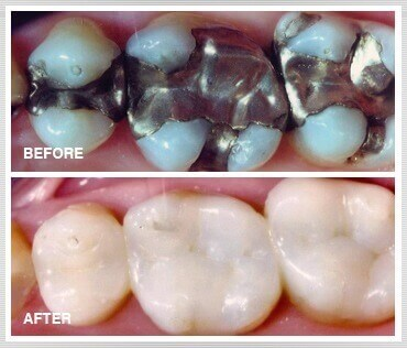TOOTH COLOURED RESTORATIONS IN PUNE