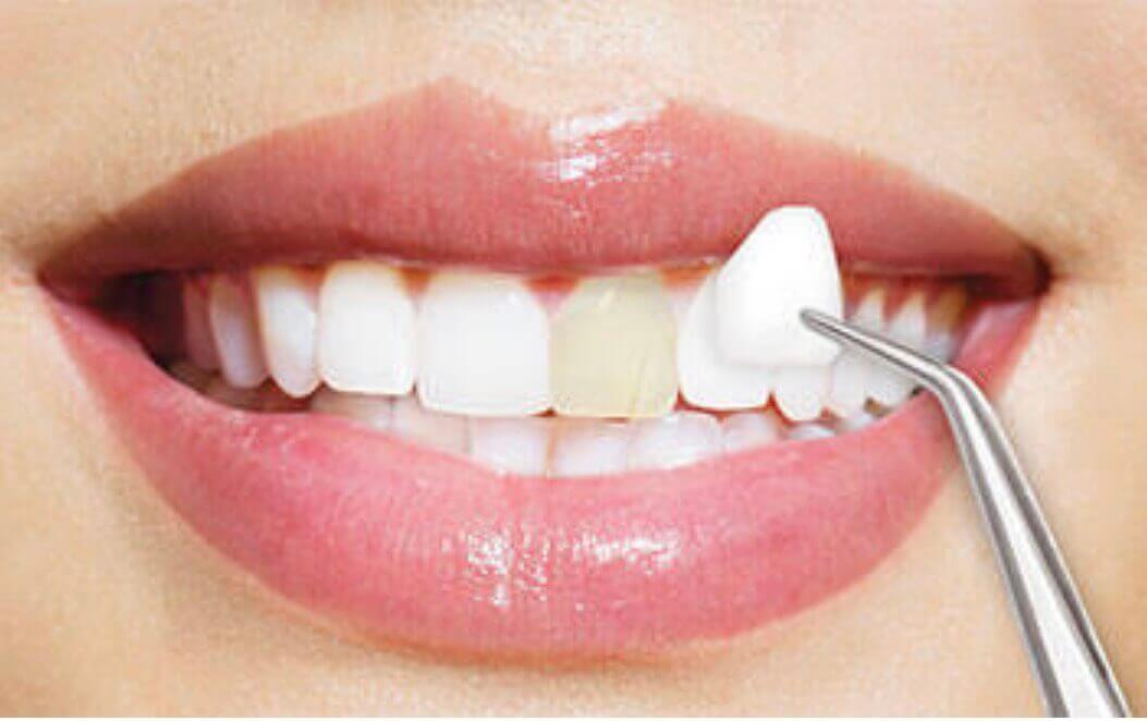 Dental Veneers In Pune Best Veneers Specialist In Pune Good